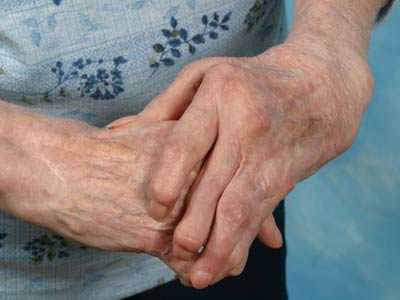 The Latest Synthetic Oil Can Be Used For The Treatment Of Arthritis Pain