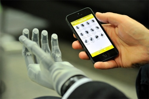 Program With Phone App For Amputees Prosthetics