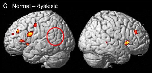Dyslexia Appears In The Brain Scan Of The Pre-School Kids