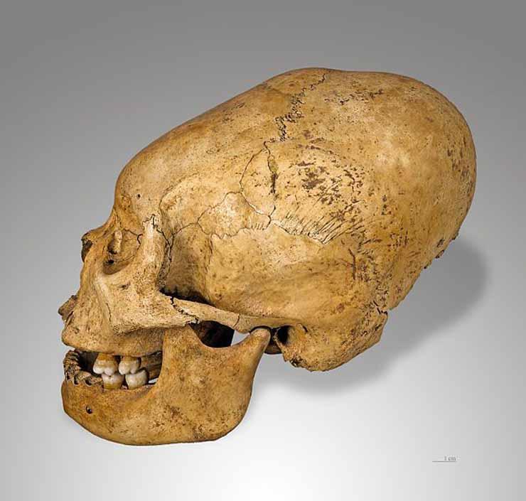 Elongated Human Skulls