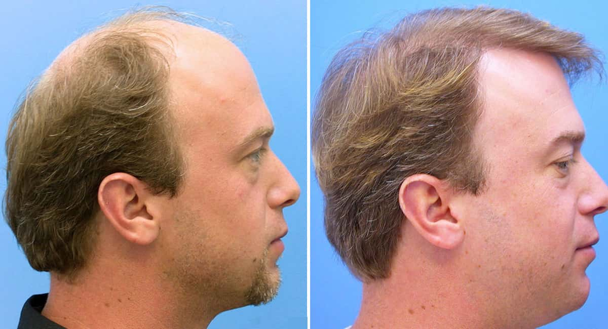 What to expect before and after a hair transplant
